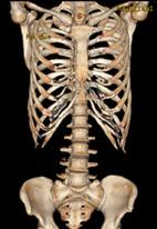 骨格3D画像