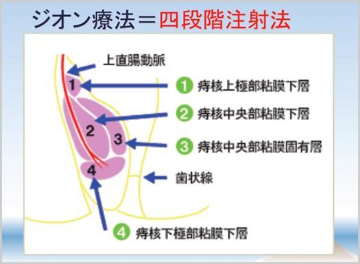 ジオン療法