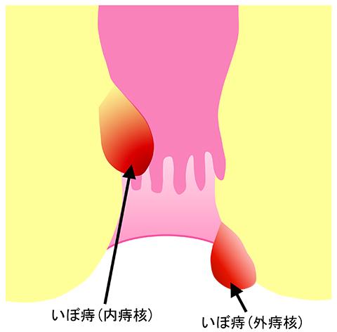 いぼ痔(痔核)